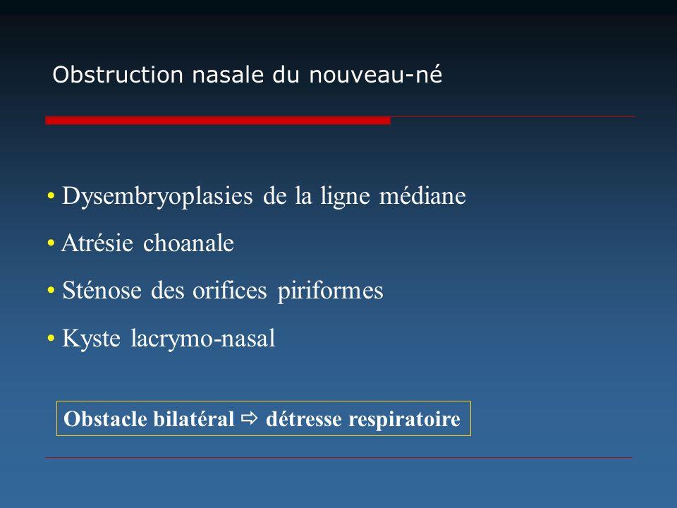 • Dysembryoplasies de la ligne médiane • Atrésie choanale