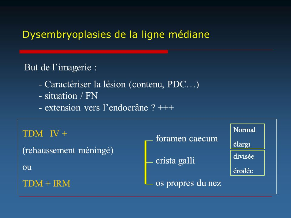 Dysembryoplasies de la ligne médiane