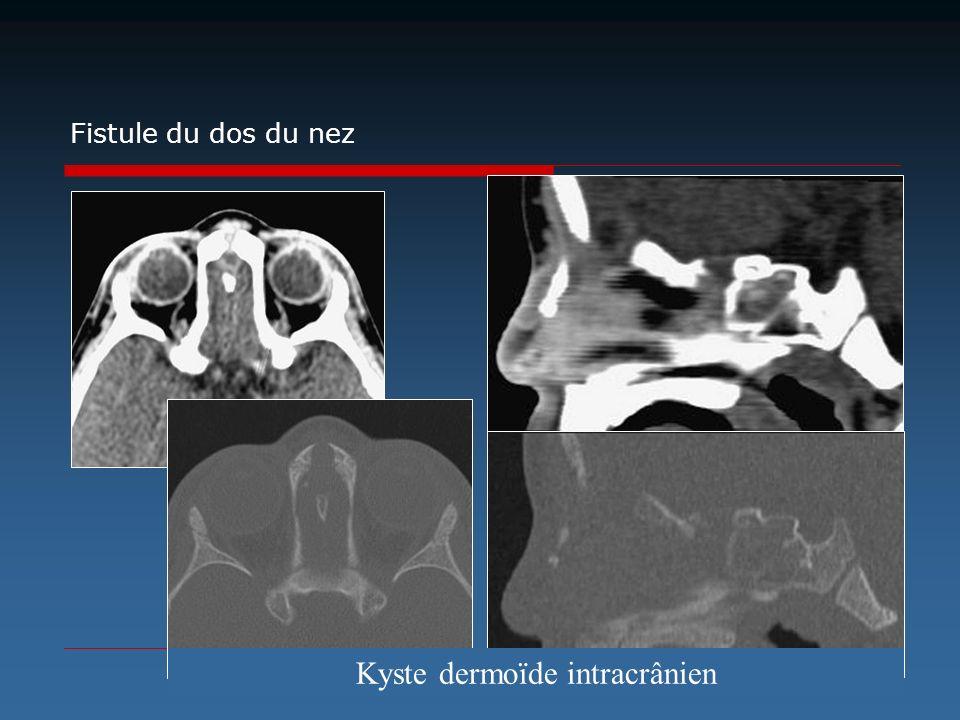 Kyste dermoïde intracrânien