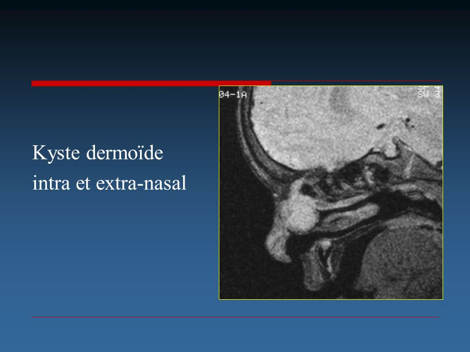 Kyste dermoïde intra et extra-nasal
