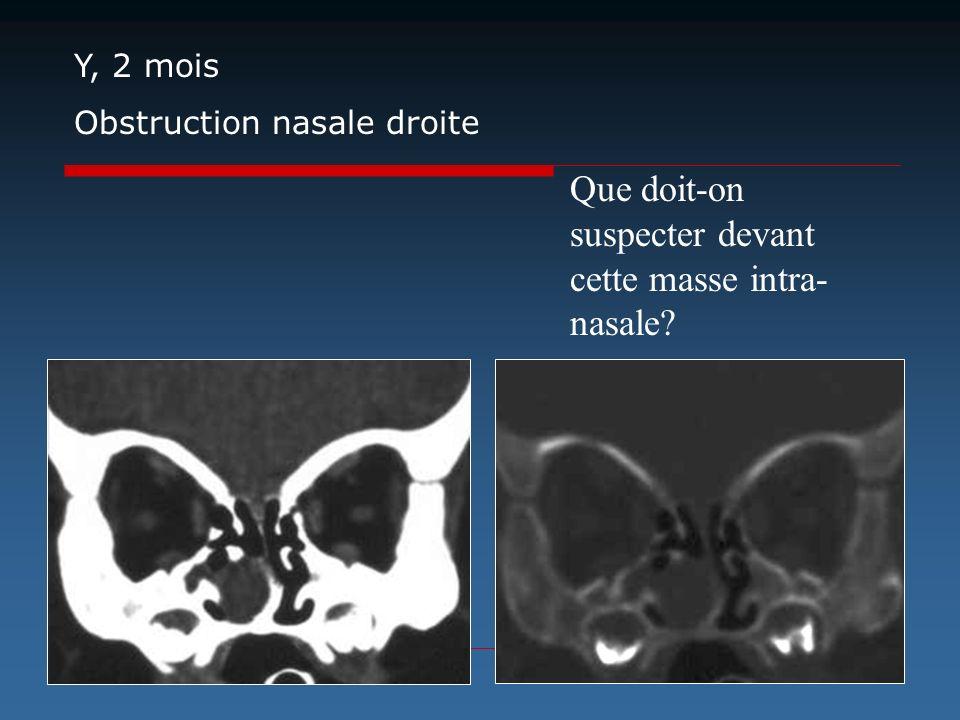 Que doit-on suspecter devant cette masse intra-nasale
