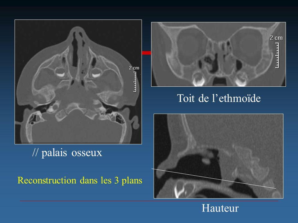 Toit de l'ethmoïde // palais osseux Hauteur