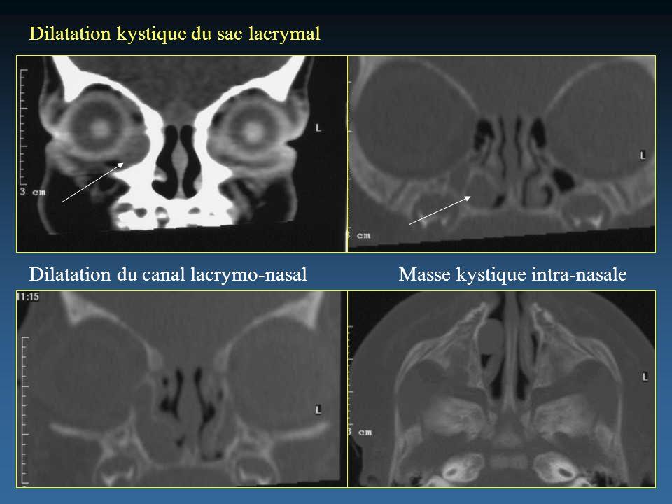 Dilatation kystique du sac lacrymal