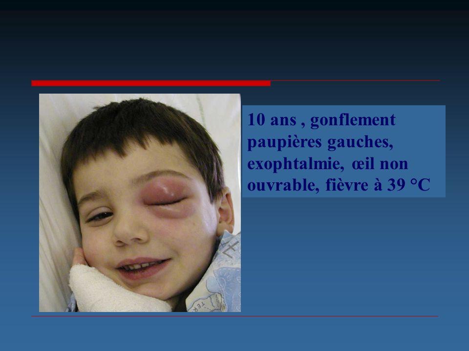 10 ans , gonflement paupières gauches, exophtalmie, œil non ouvrable, fièvre à 39 °C