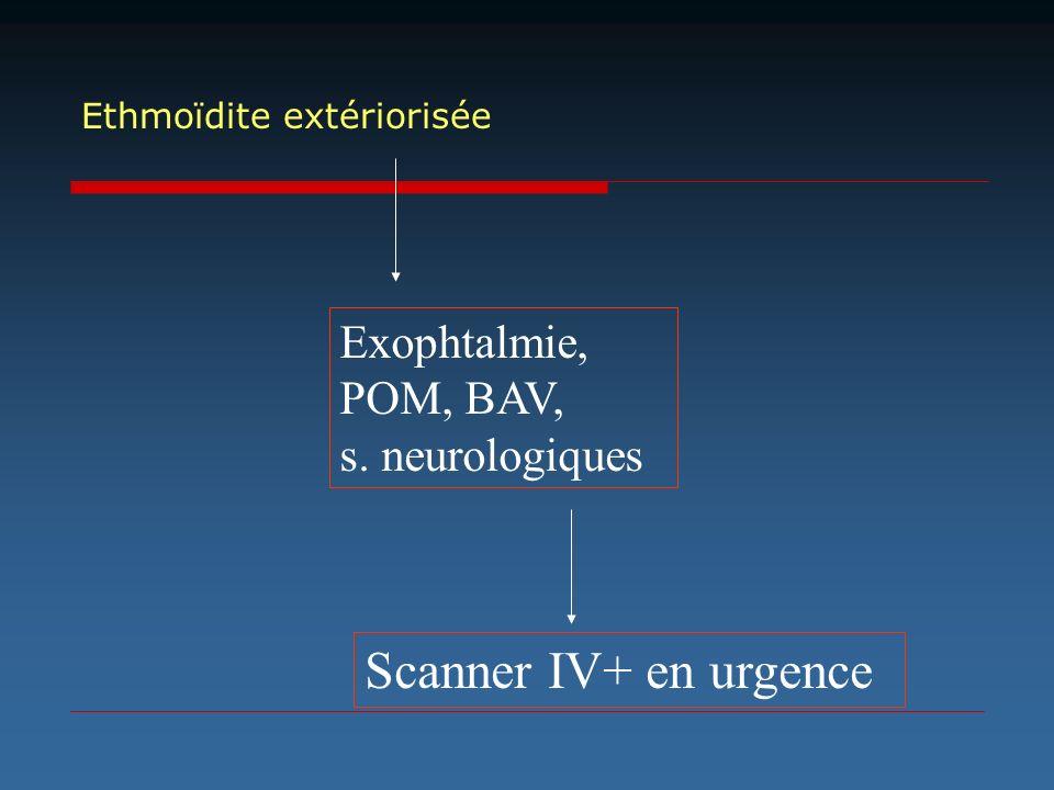 Scanner IV+ en urgence Exophtalmie, POM, BAV, s. neurologiques