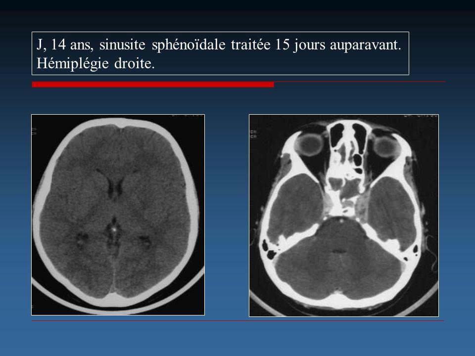 J, 14 ans, sinusite sphénoïdale traitée 15 jours auparavant.
