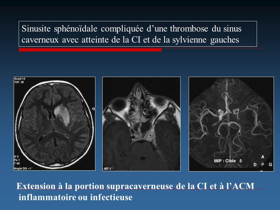 Sinusite sphénoïdale compliquée d'une thrombose du sinus caverneux avec atteinte de la CI et de la sylvienne gauches