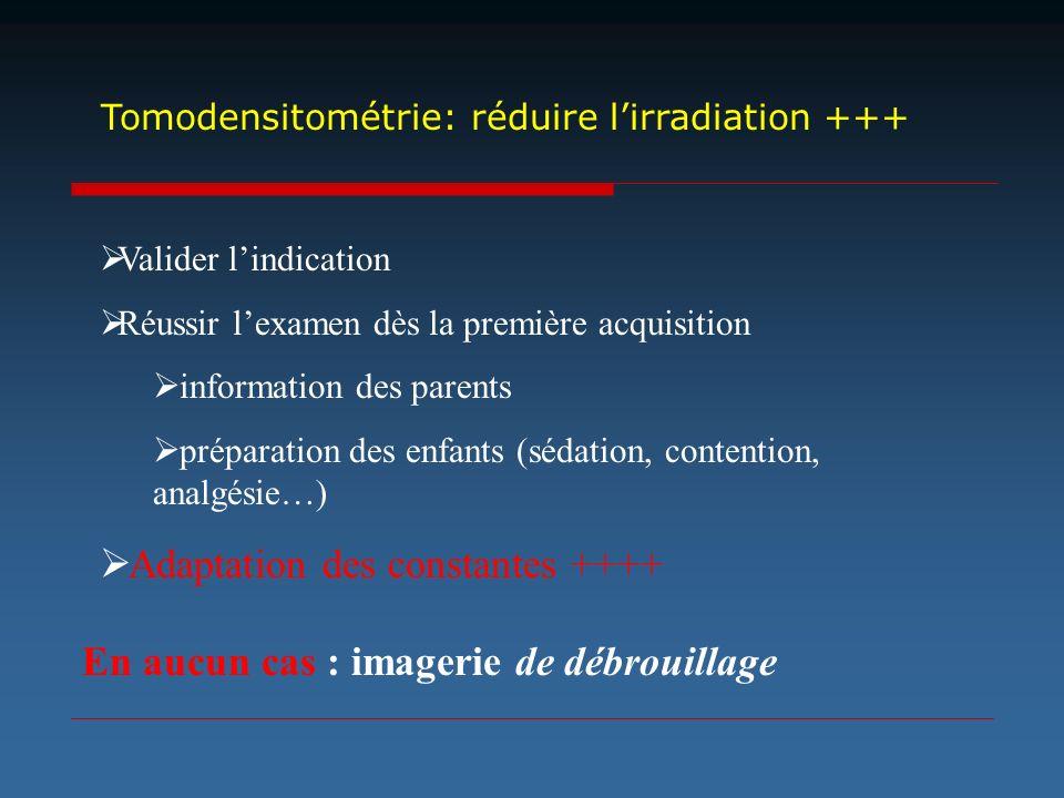 Tomodensitométrie: réduire l'irradiation +++