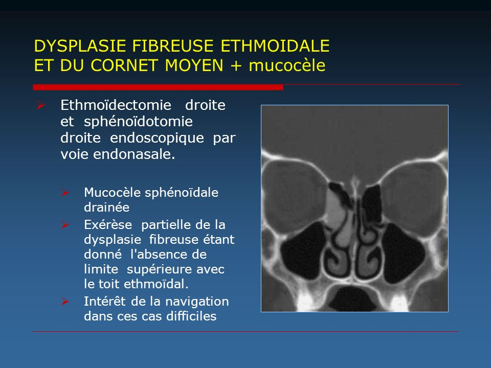 DYSPLASIE FIBREUSE ETHMOIDALE ET DU CORNET MOYEN + mucocèle