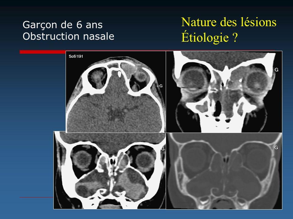 Nature des lésions Étiologie Garçon de 6 ans Obstruction nasale