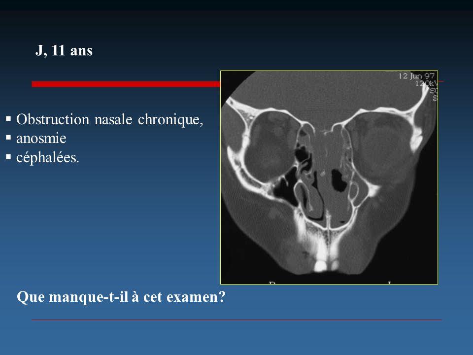 J, 11 ans Obstruction nasale chronique, anosmie céphalées. Que manque-t-il à cet examen
