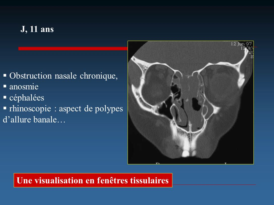 J, 11 ans Obstruction nasale chronique, anosmie. céphalées. rhinoscopie : aspect de polypes d'allure banale…