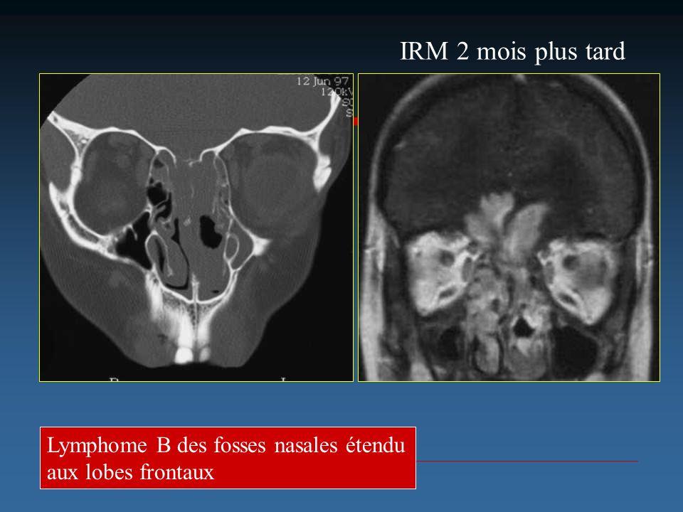 IRM 2 mois plus tard Lymphome B des fosses nasales étendu