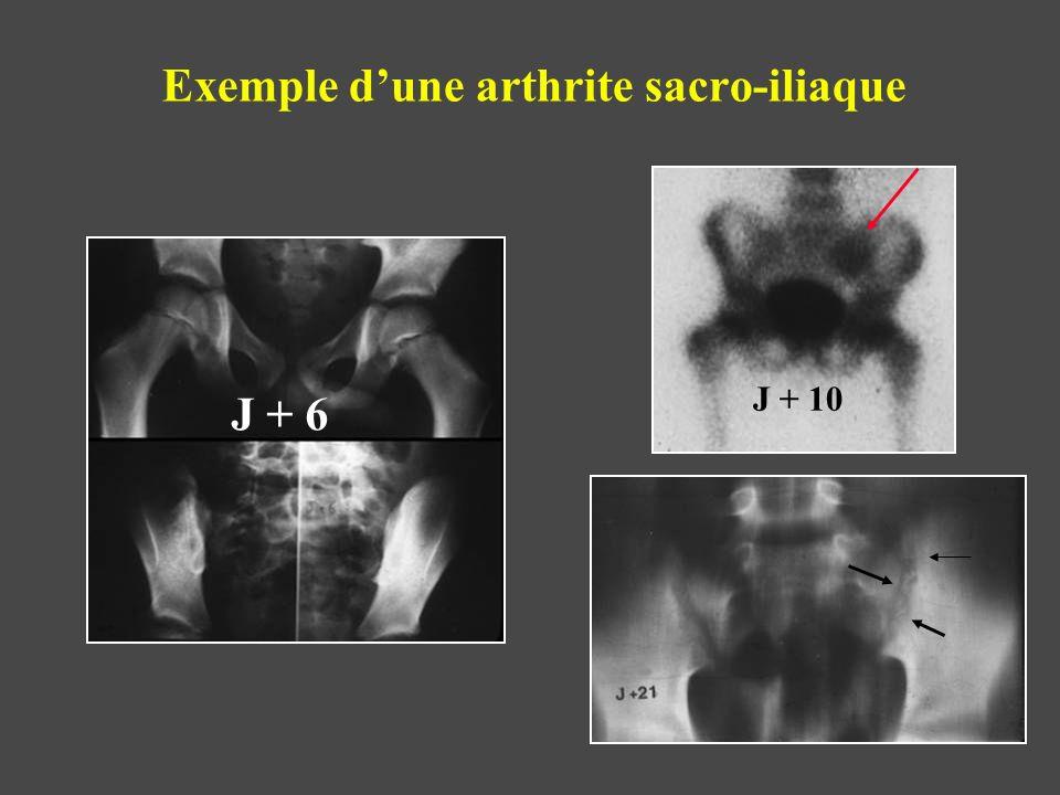 Exemple d'une arthrite sacro-iliaque