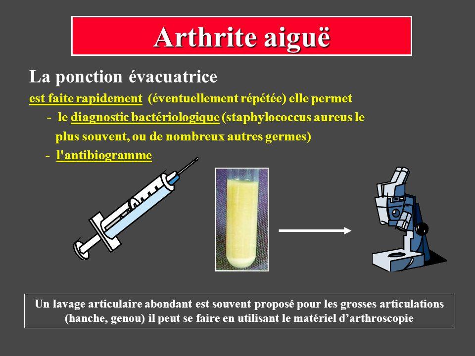 Arthrite aiguë La ponction évacuatrice