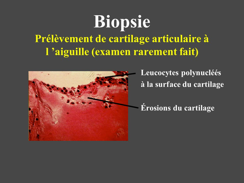 Biopsie Prélèvement de cartilage articulaire à l 'aiguille (examen rarement fait)