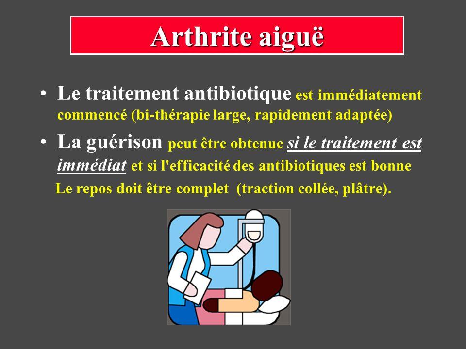 Arthrite aiguë Le traitement antibiotique est immédiatement commencé (bi-thérapie large, rapidement adaptée)