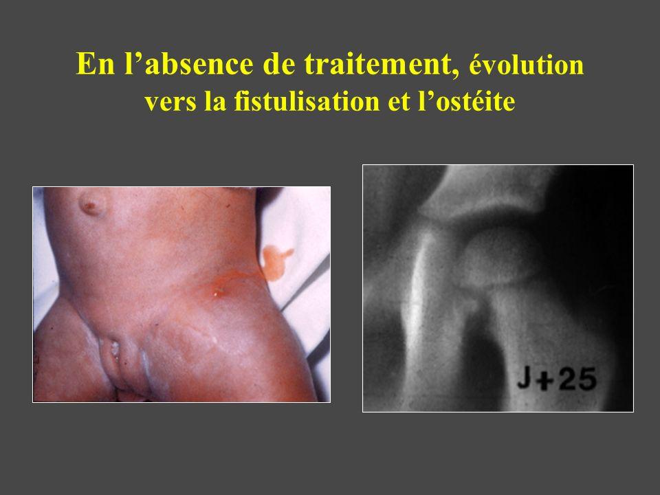 En l'absence de traitement, évolution vers la fistulisation et l'ostéite