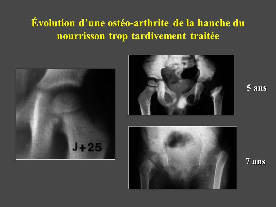 Évolution d'une ostéo-arthrite de la hanche du nourrisson trop tardivement traitée