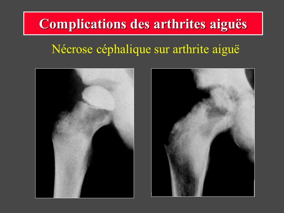 Nécrose céphalique sur arthrite aiguë