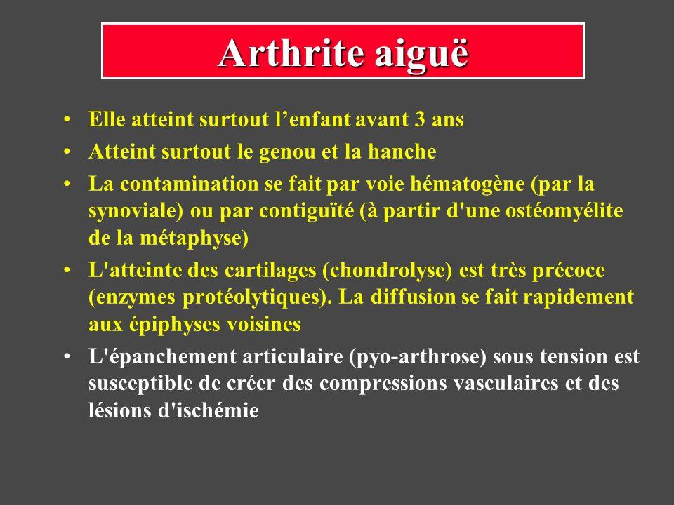 Arthrite aiguë Elle atteint surtout l'enfant avant 3 ans