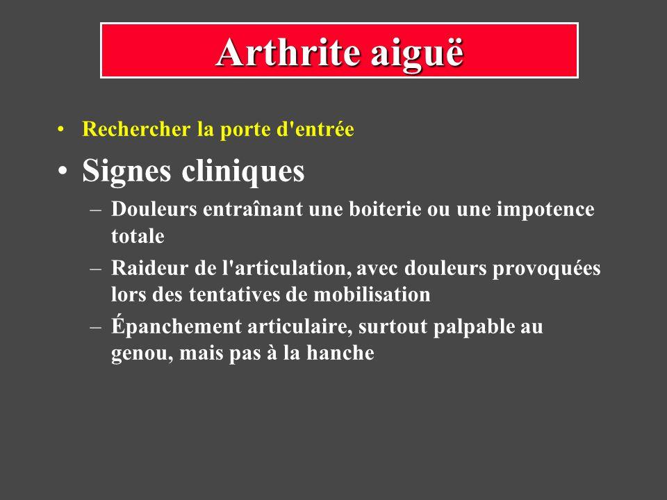 Arthrite aiguë Signes cliniques Rechercher la porte d entrée