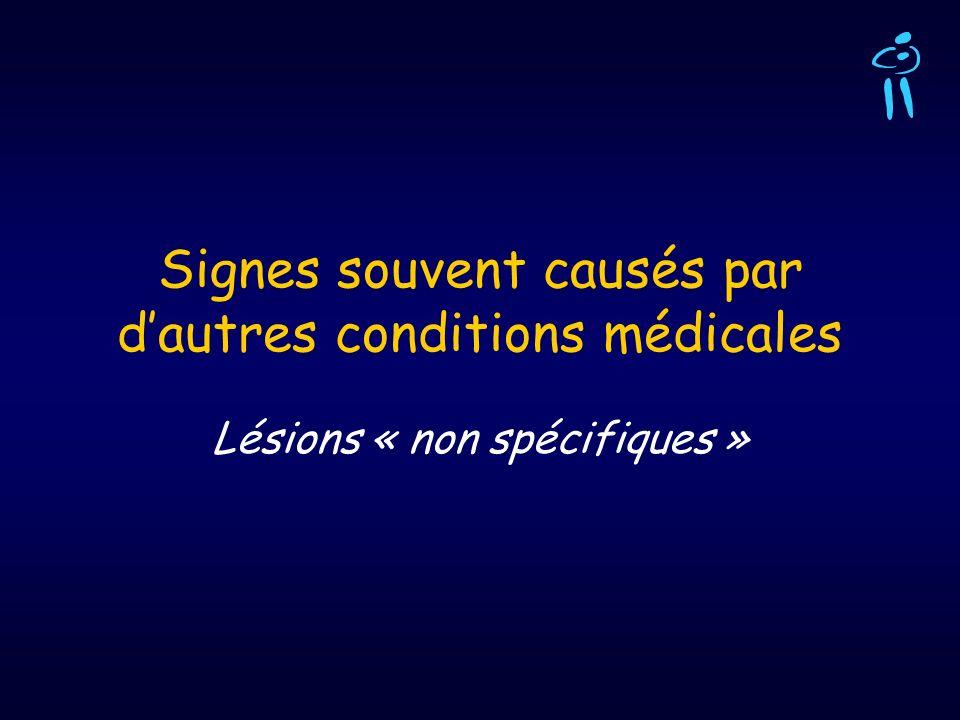 Signes souvent causés par d'autres conditions médicales