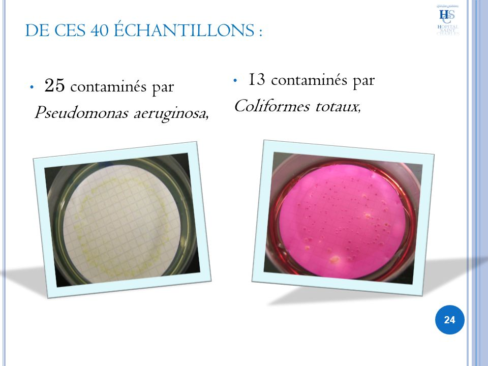 DE CES 40 ÉCHANTILLONS : 25 contaminés par. Pseudomonas aeruginosa, 13 contaminés par.