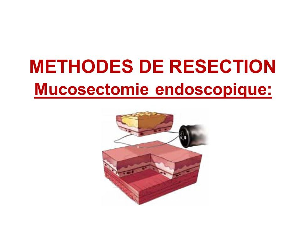 METHODES DE RESECTION Mucosectomie endoscopique: