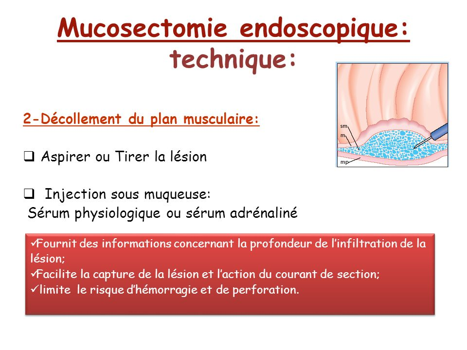 Mucosectomie endoscopique: technique: