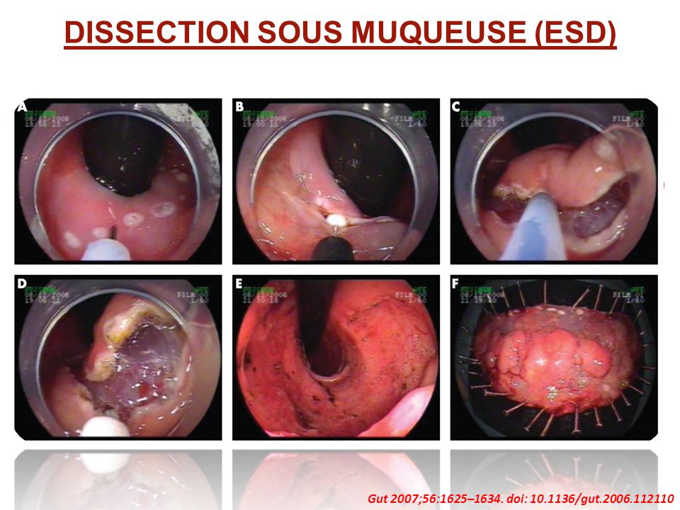DISSECTION SOUS MUQUEUSE (ESD)