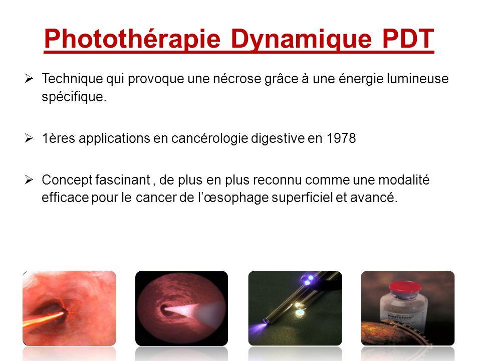 Photothérapie Dynamique PDT