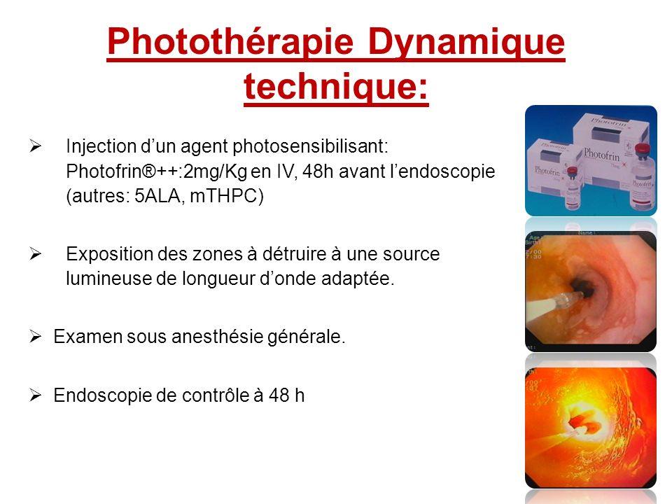 Photothérapie Dynamique technique: