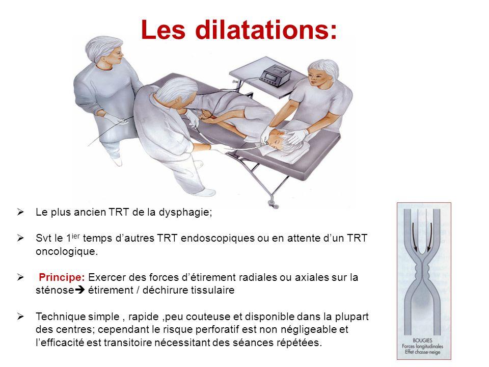 Les dilatations: Le plus ancien TRT de la dysphagie;