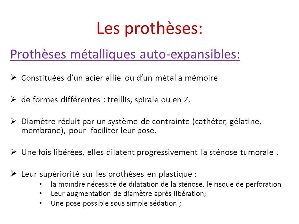 Les prothèses: Prothèses métalliques auto-expansibles: