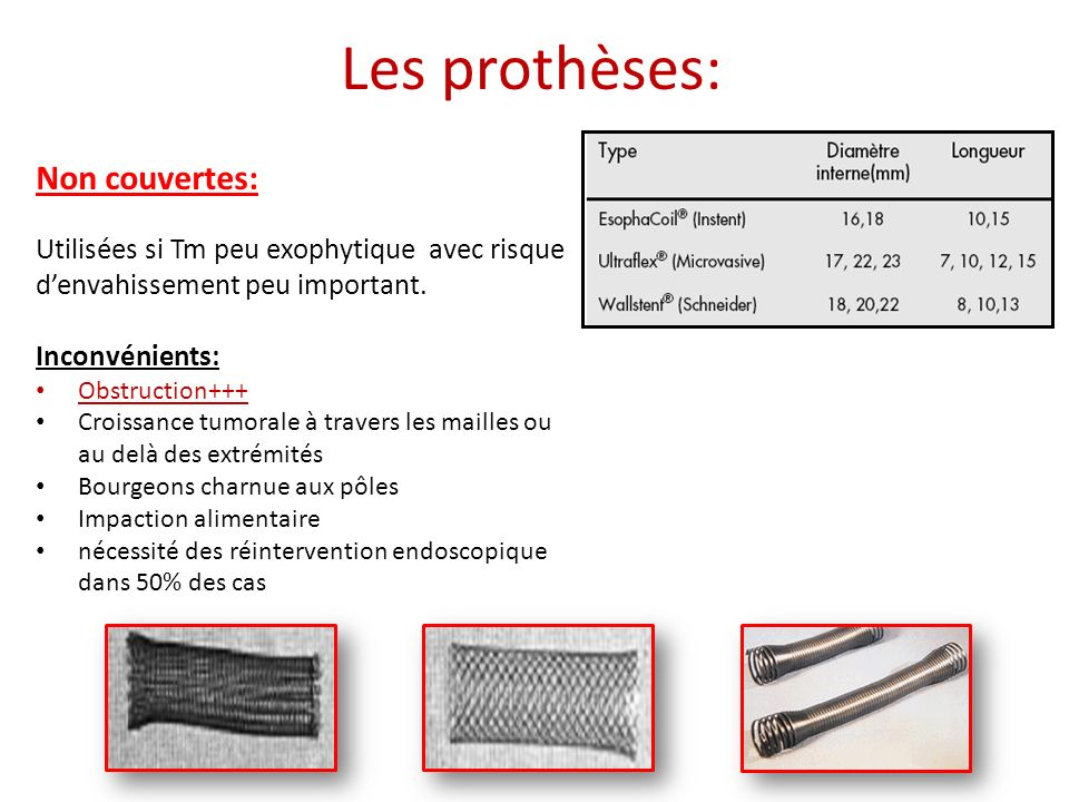 Les prothèses: Non couvertes: