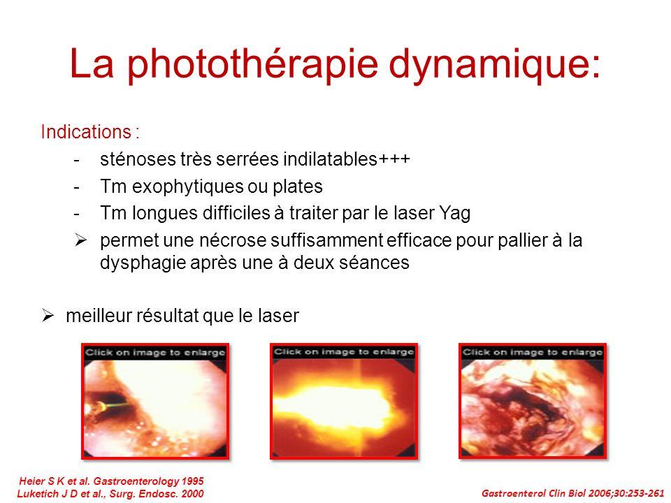 La photothérapie dynamique: