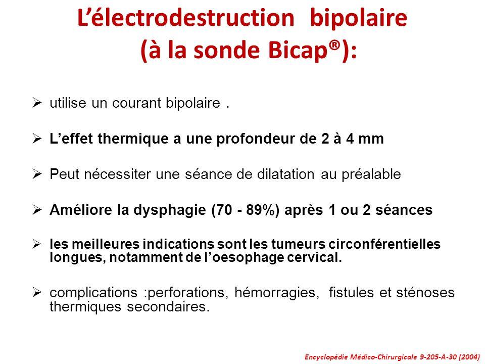 L'électrodestruction bipolaire (à la sonde Bicap®):