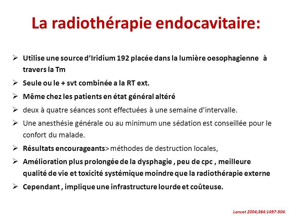 La radiothérapie endocavitaire: