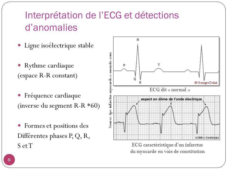 Interprétation de l'ECG et détections d'anomalies