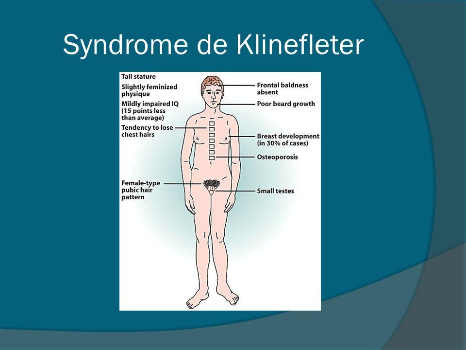 Syndrome de Klinefleter