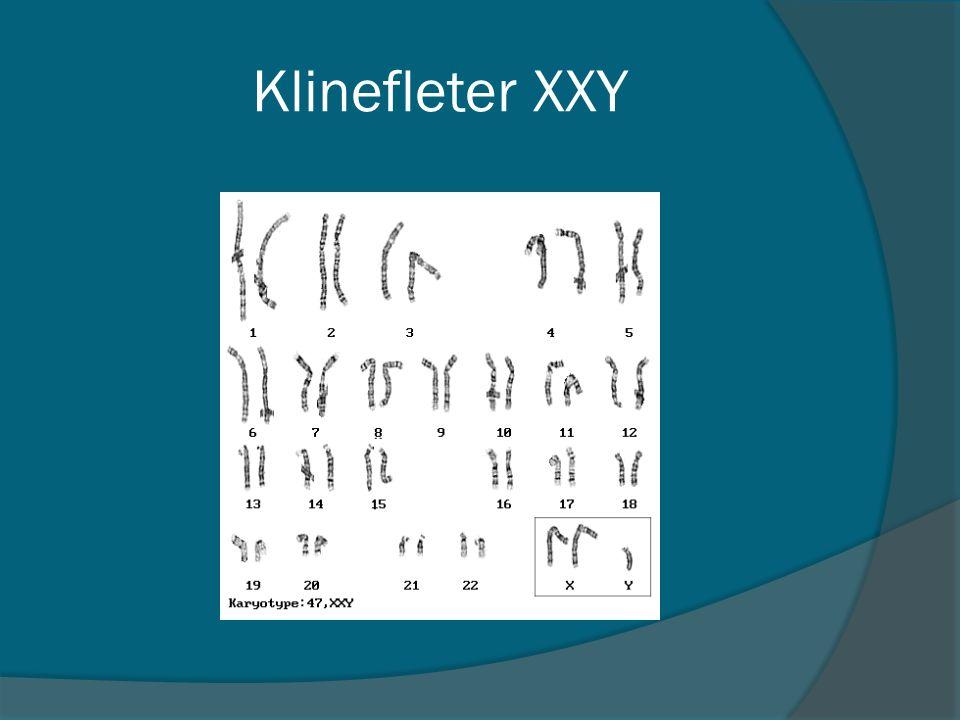 Klinefleter XXY