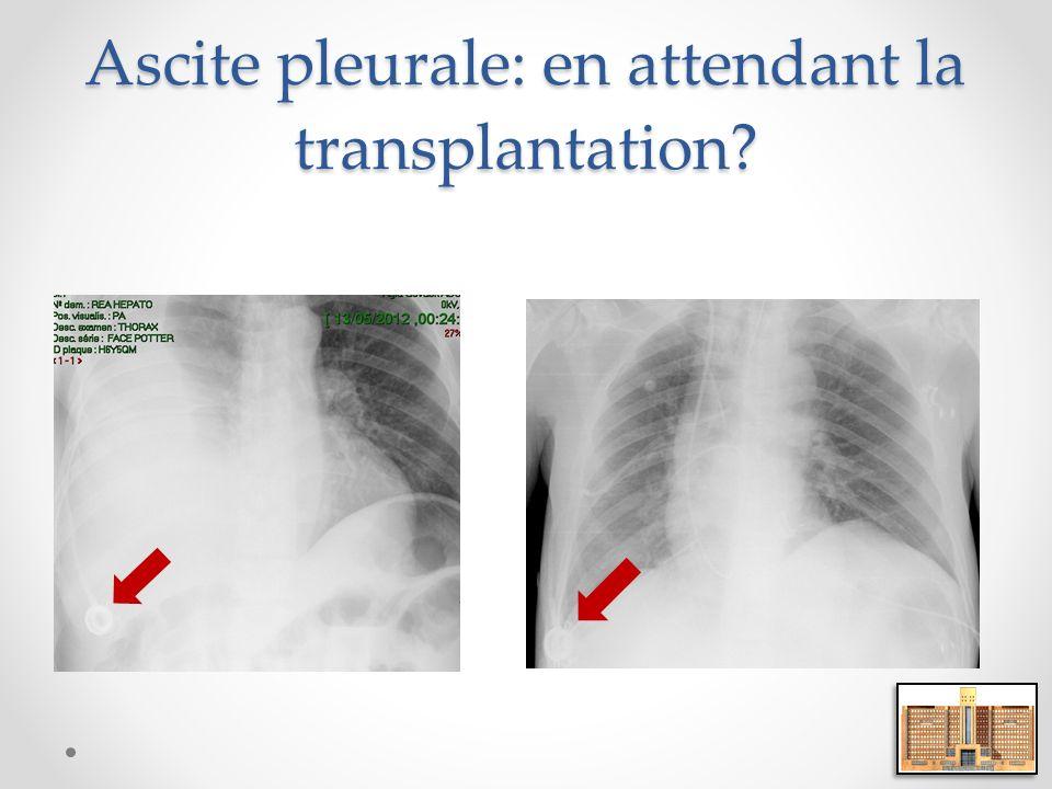 Ascite pleurale: en attendant la transplantation