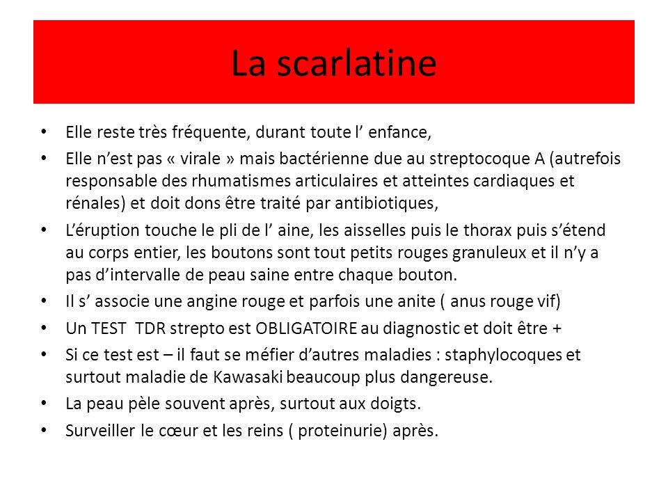 La scarlatine Elle reste très fréquente, durant toute l' enfance,