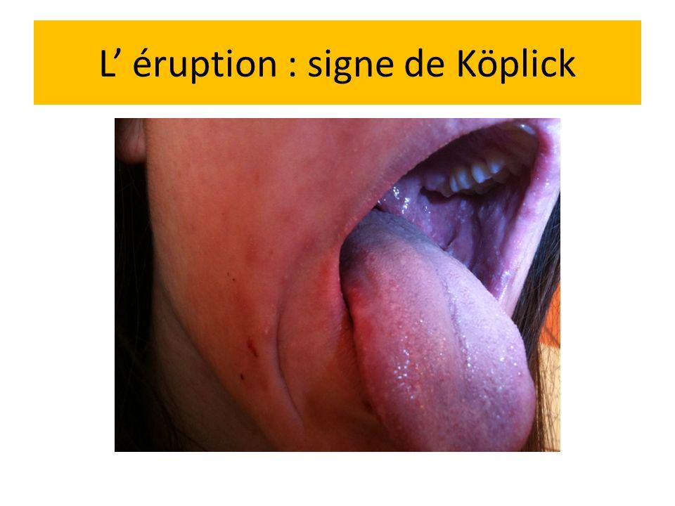 L' éruption : signe de Köplick