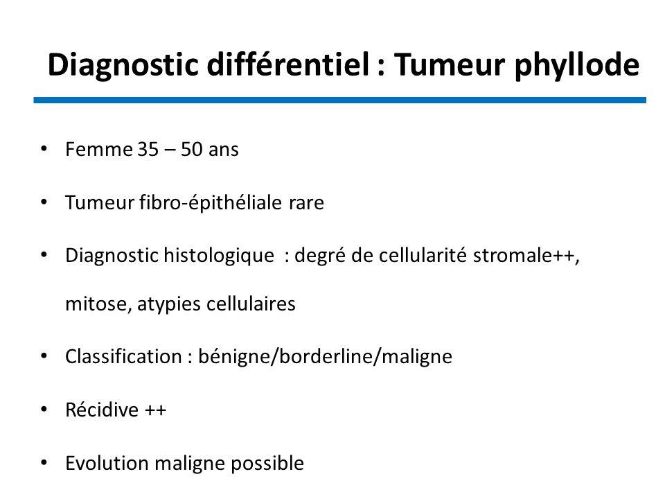 Diagnostic différentiel : Tumeur phyllode