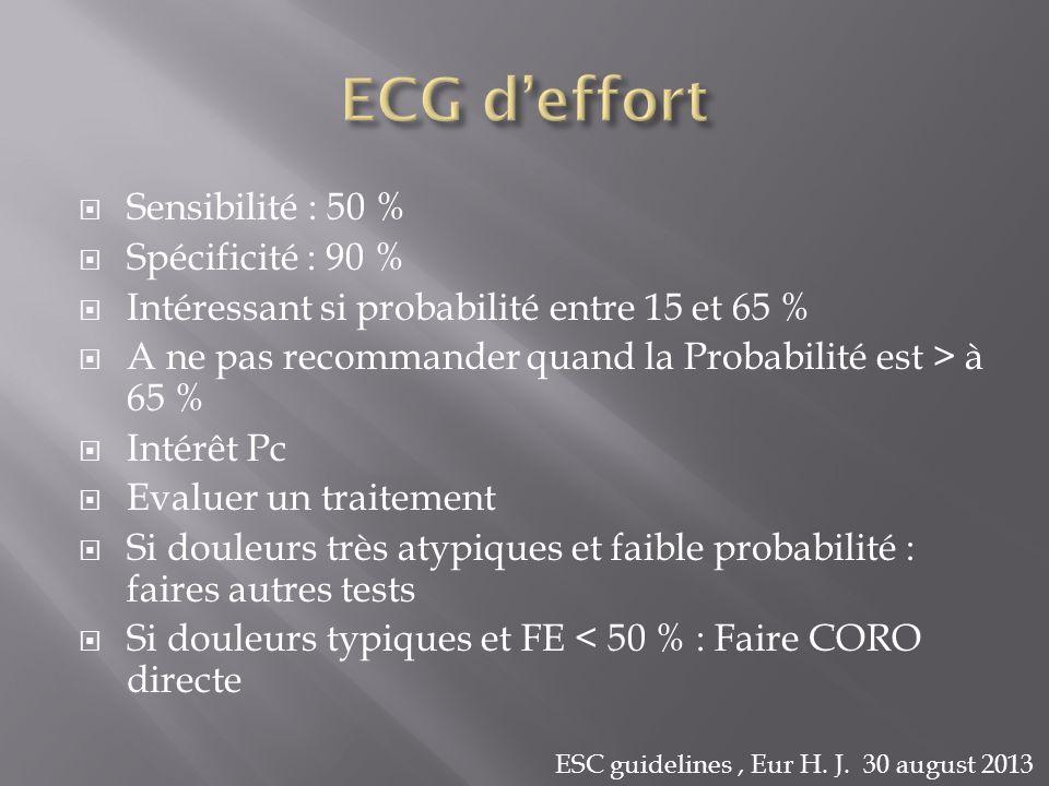 ECG d'effort Sensibilité : 50 % Spécificité : 90 %
