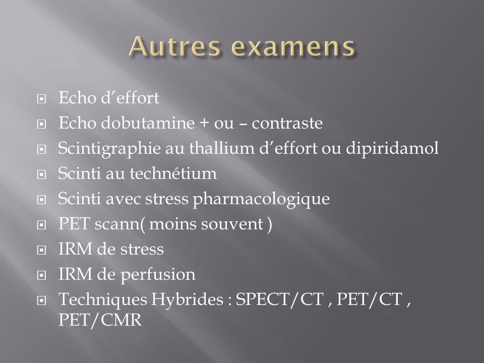 Autres examens Echo d'effort Echo dobutamine + ou – contraste