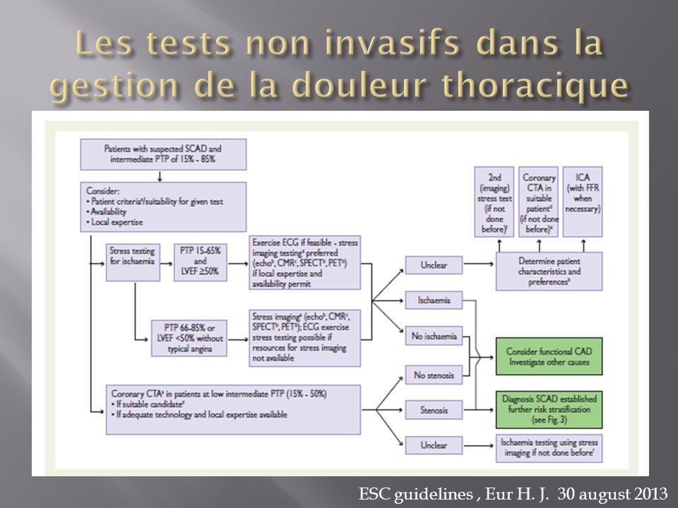 Les tests non invasifs dans la gestion de la douleur thoracique