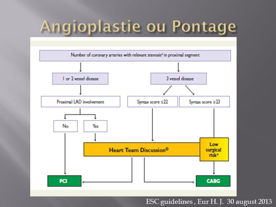 Angioplastie ou Pontage
